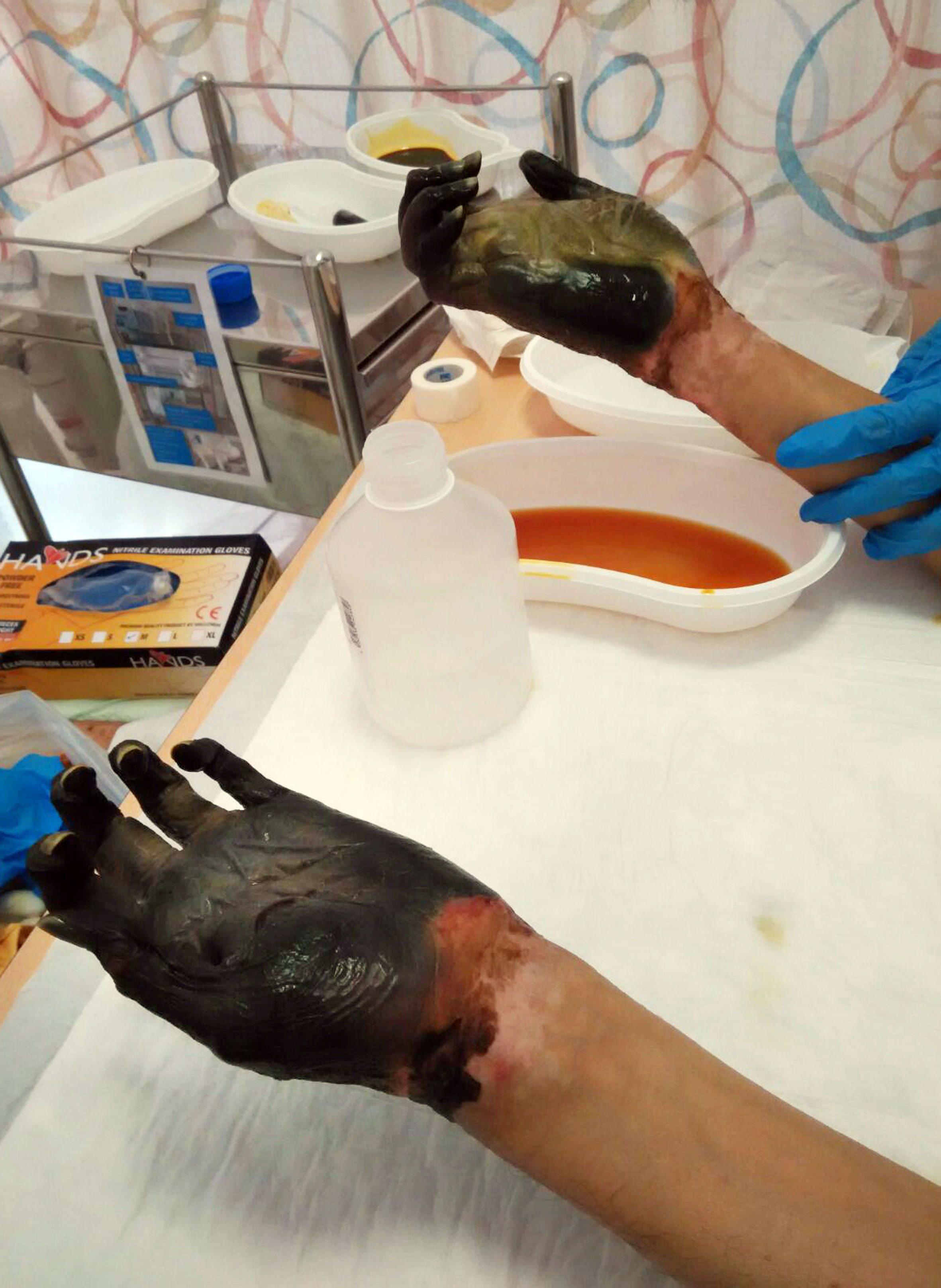 Man's hands and feet to be amputated after food poisoning ...