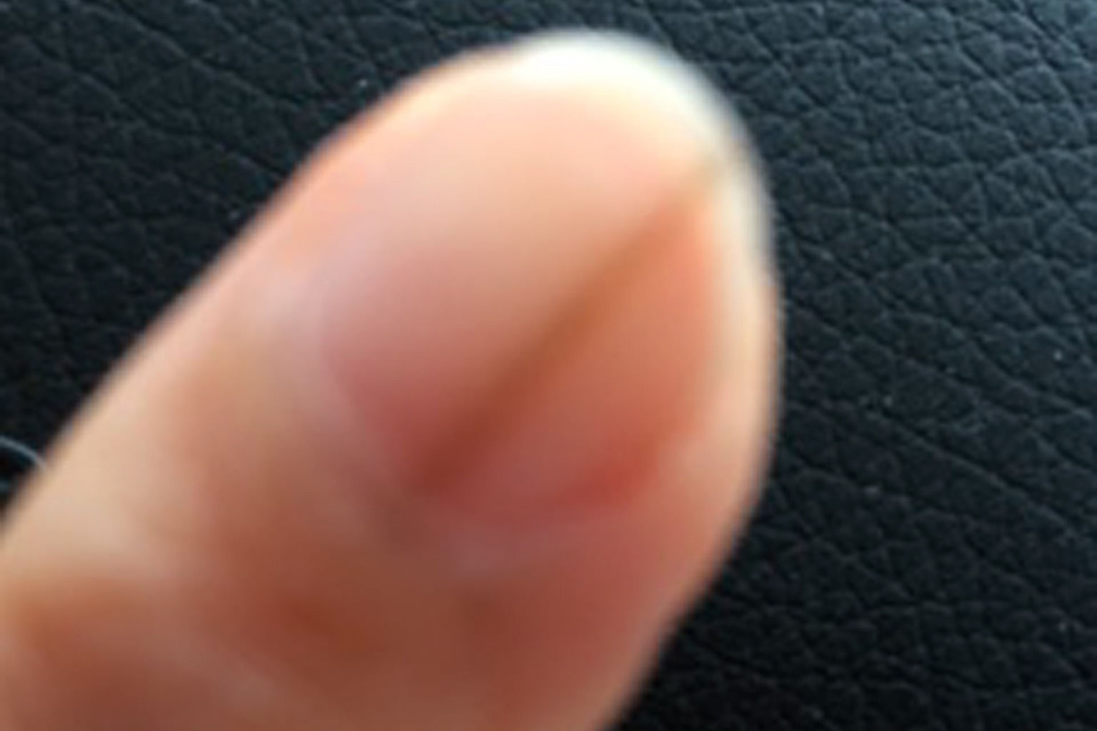 Monitor fingernail for changes to pigment pattern , Health News ...