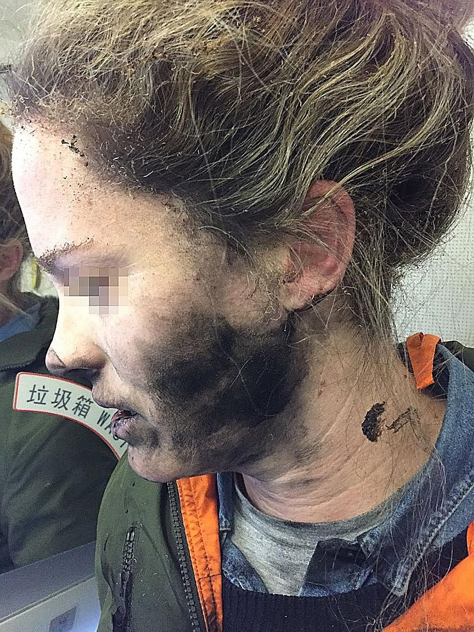 The battery-operated headphones exploded while the woman was listening to music and dozing about two hours into her flight from Beijing to Melbourne on Feb 19.