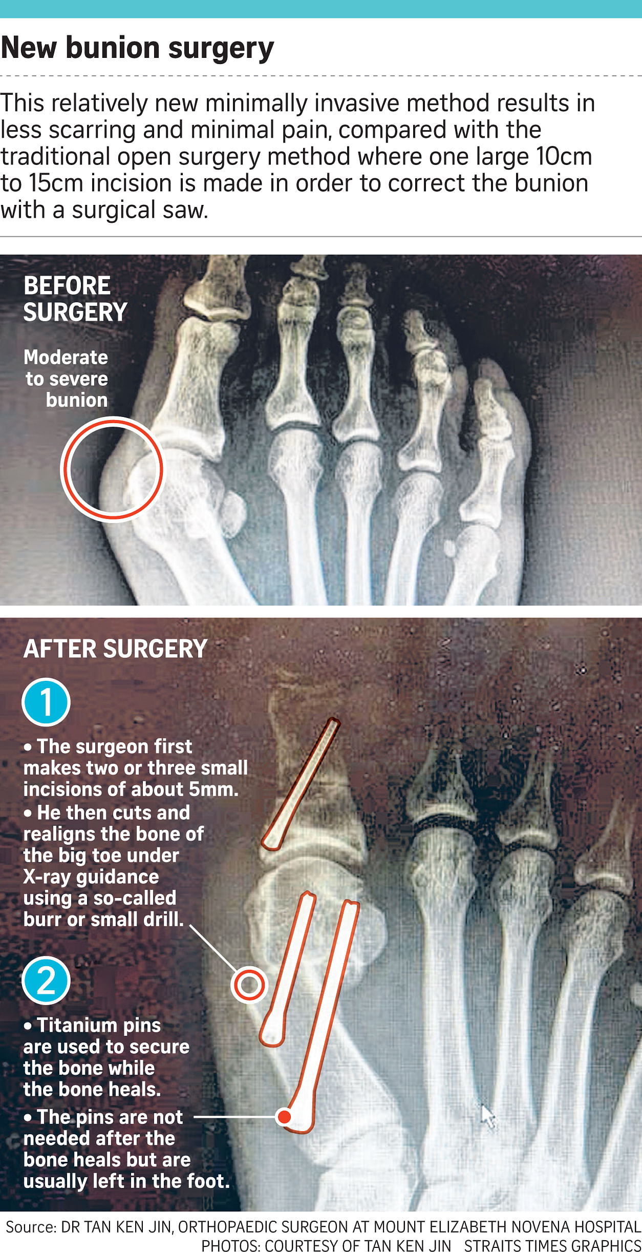 Fixing that bunion problem can be a snip - if done early