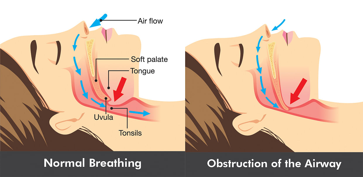Did you know a dentist can help you stop snoring?, Health