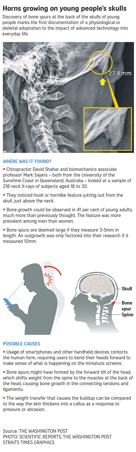 Horns are growing on young people's skulls due to phone use