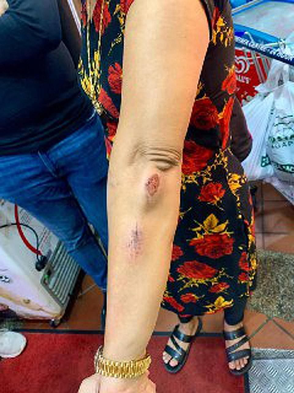Madam Hindocha Nita Vishnubhai, 55, said she was brisk walking from Choa Chu Kang MRT station towards the stadium at about 8.30am last Friday when the alleged attack occurred near Northvale Condominium (top). She has scratches (above) on her arms and