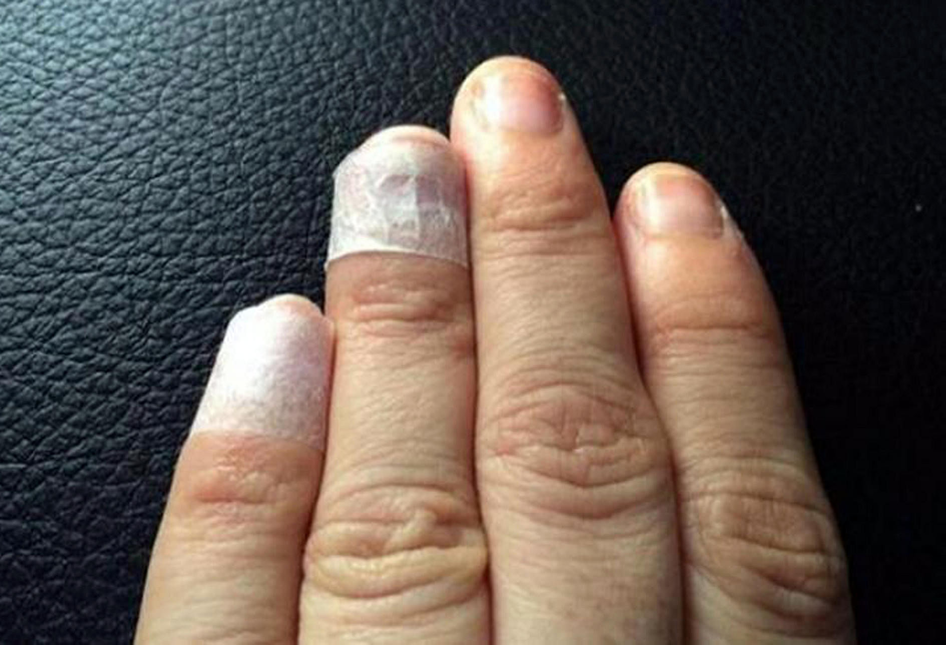 Mother loses hair, fingernails in hand, foot and mouth disease ...