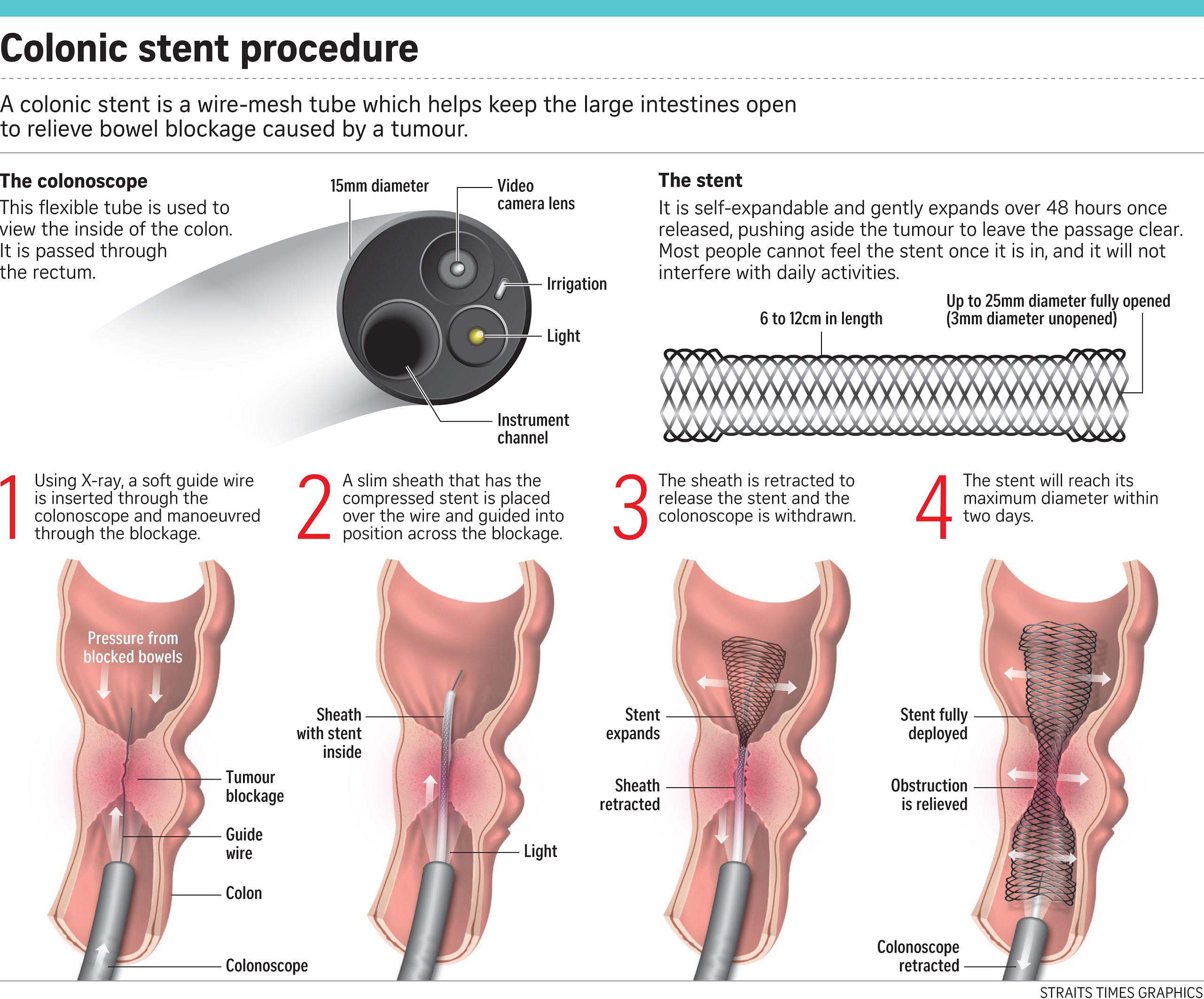 Stents To Unblock The Intestines Health News Top Stories The