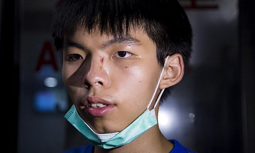 Hong Kong student leader Joshua Wong at a hospital yesterday after he was assaulted on the way home with his girlfriend.