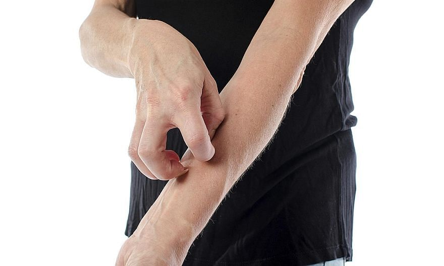 Eczema is a common chronic dry skin condition. In mild cases, the skin is scaly, red and itchy. If it is severe, the skin can weep, crust, blister or bleed. Scratching can cause the skin to split and bleed, leaving it open to infection.