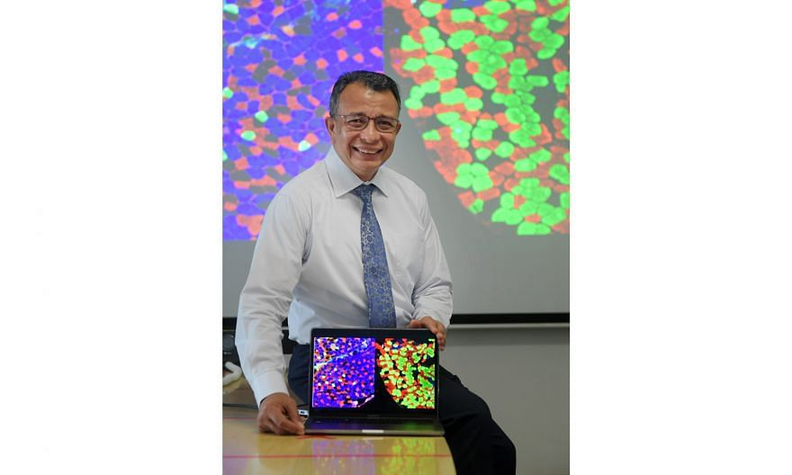 Associate Professor Alfredo Franco-Obregon of the National University of Singapore's Institute for Health Innovation and Technology showing an image with the different muscle fibre types. The green fibres are those where TRPC1, which confers sensitiv