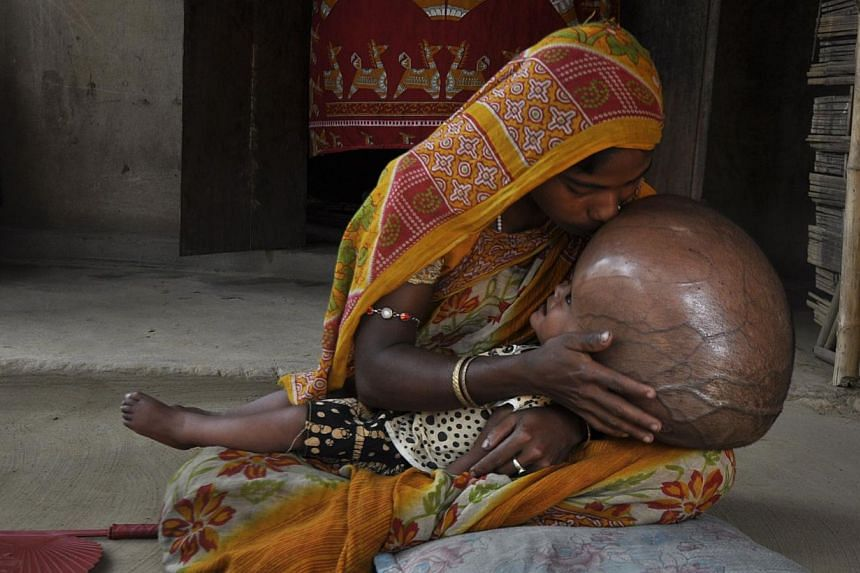 Fatima Khatun kisses the head of her 18-month-old daughter, Roona Begum, at their hut in Jirania village on the outskirts of Agartala, the capital of the north-eastern state of Tripura on Saturday, April 13, 2013. Doctors on Friday, Aug 1, 2013, disc