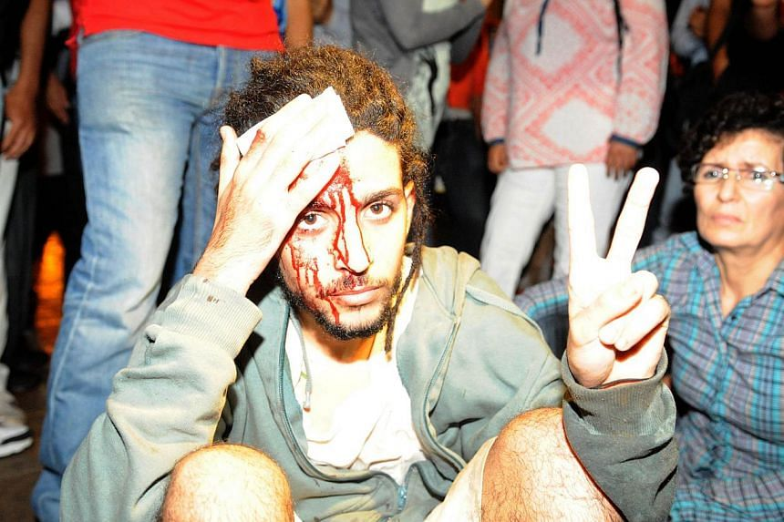 A protester injured during a demonstration on Aug 2, 2013, in Rabat-Morocco on the release of a Spanish paedophile, Daniel Fino Galvan, who raped 11 local children was pardoned by the Moroccan King Mohammed VI. -- PHOTO: AFP
