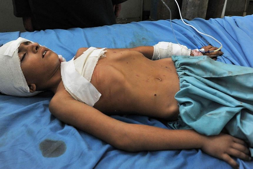 A wounded Afghan boy receives treatment at a hospital in Jalalabad after an explosion in the Ghani Khel district of Nangarhar province on Aug 8, 2013. An explosion killed at least 10 women in a graveyard in eastern Afghanistan on August 8, officials