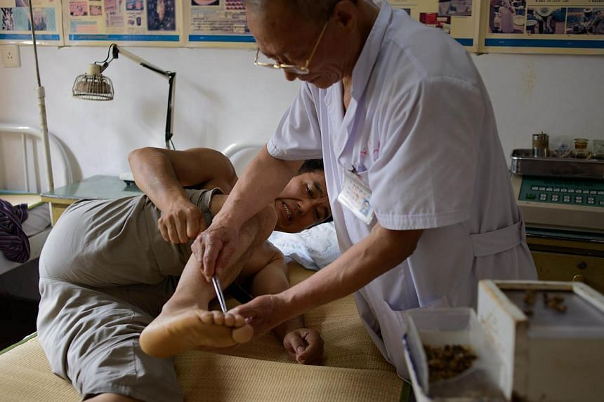 A patient receives a bee sting administered by a doctor of traditional Chinese medicine at a clinic on the outskirts of Beijing on Aug 2, 2013. Patients in China are swarming to acupuncture clinics to be given bee stings to treat or ward off life-thr