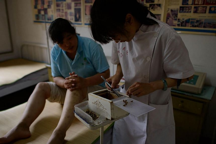 A doctor of traditional Chinese medicine prepares to administer a bee sting to a patient at a clinic on the outskirts of Beijing on Aug 2, 2013. Patients in China are swarming to acupuncture clinics to be given bee stings to treat or ward off life-th