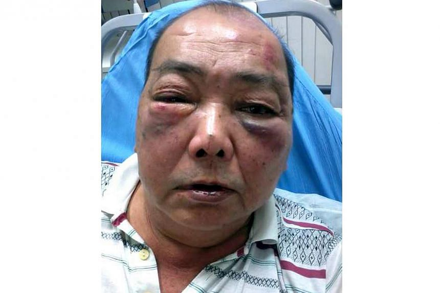 Cabby driver Ling Ah Yen, who claimed that he was attacked by four men after he ran over one of the men's pet chihuahua at Ang Mo Kio Street 12 on Feb 8, 2013. Mr Toh, a chef, has denied assulting the cabby driver because of his dog's death.&nbs