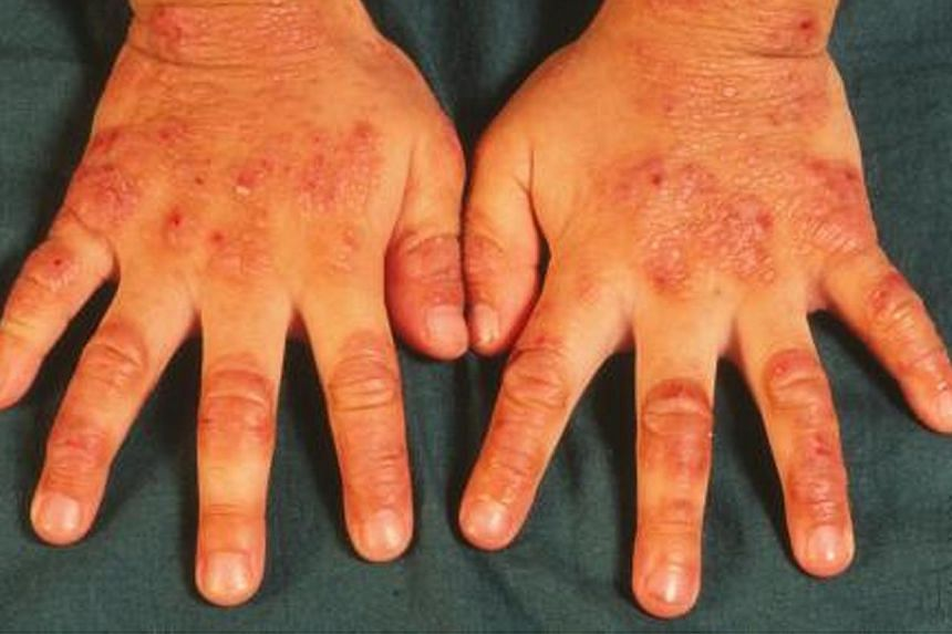 A patient's hands with eczema. Singapore announced a new $100 million skin research centre on Thursday. It will be dedicated to research into areas such as skin ageing and diseases like eczema and pigmentation disorders. -- FILE PHOTO: NATIONAL SKIN