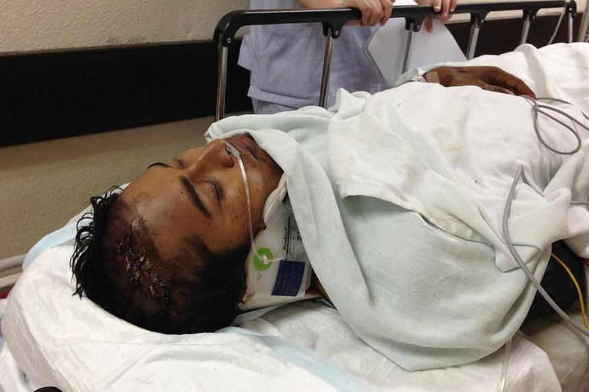 Injured foreign worker Imran, 23, from Bangladesh has just been transferred to a High Dependency Ward, waiting to be operated on. Mr Imran is one of the three seriously injured workers at the construction site for the future National Art Gallery. Two