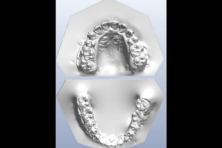 Samples of 3-D digital orthodontic models of patients' teeth that are now being used in place of plaster moulds at the National Dental Centre Singapore. -- PHOTO: NATIONAL DENTAL CENTRE SINGAPORE
