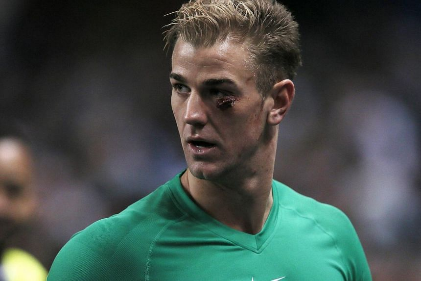 Manchester City goalkeeper Joe Hart is seen with a cut under his eye as he salutes fans after winning their English Premier League soccer match against Crystal Palace at the Etihad stadium in Manchester, northern England, on Dec 28, 2013. Hart, who n