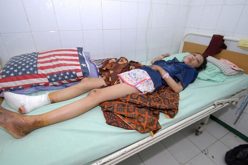 Indonesian Erwiana Sulistyaningsih rests at a hospital in Sragen, on Jan 15, 2013. -- PHOTO: AFP