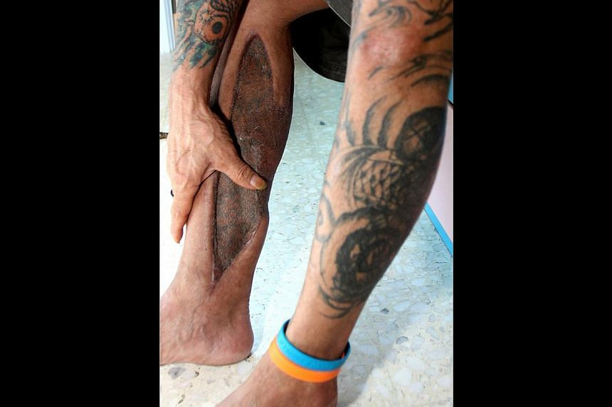 A patient whose right calf was infected with necrotising fasciitis after he suffered a scrape. To save the leg, skin was grafted from his left thigh.
