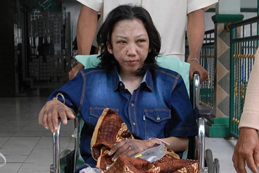 Indonesian Erwiana Sulistyaningsih sits in a wheelchair at a hospital in Sragen, on Jan 15, 2013. Investigators from Hong Kong will travel to Indonesia to speak with Sulistyaningsih who left the Chinese city after she was allegedly tortured by her em