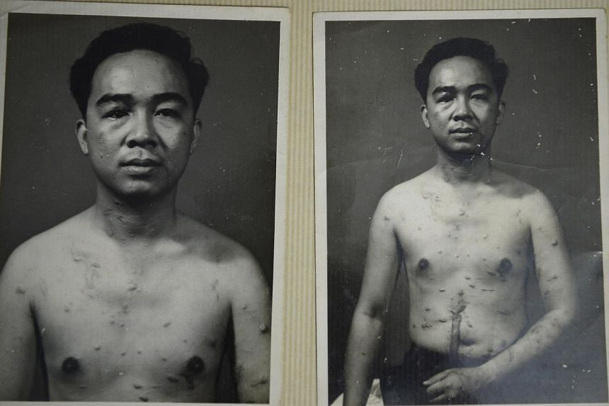 Aside from losing his right eye, Reverend Yeo Suan Kim (above) also suffered multiple cuts all over his body from glass splinters, some of which pierced his liver and diaphragm. -- PHOTO: COURTESY OF REVEREND YEO SUAN KIM