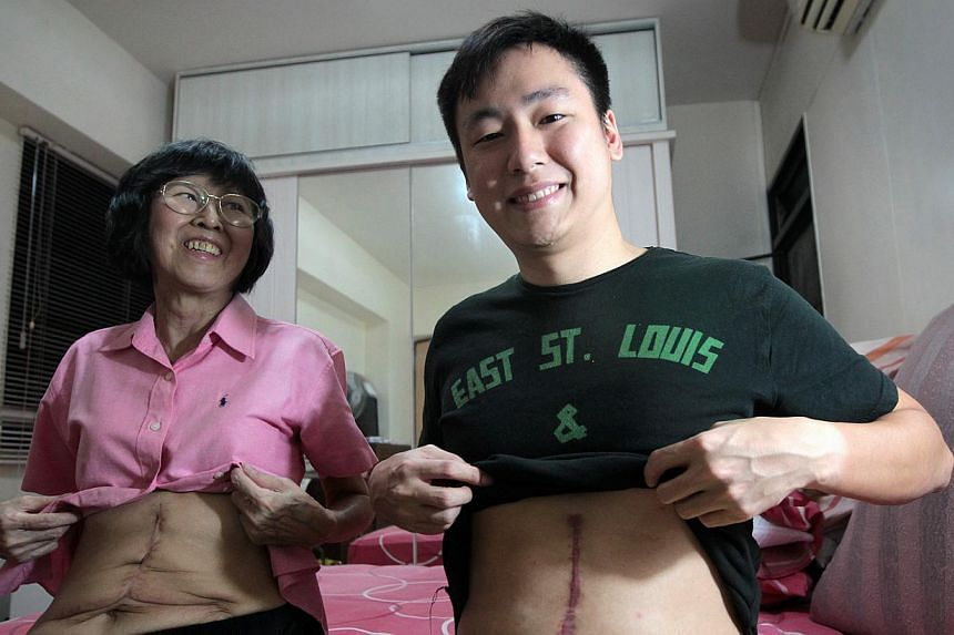 The only reminders of the grim days pre-surgery are the twin scars branded from chest to abdomen on mother and son.