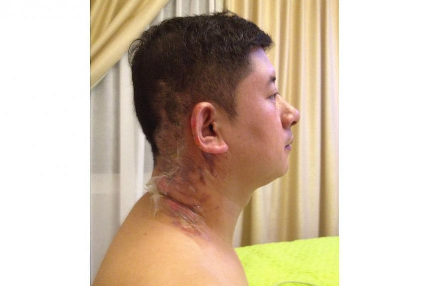 Mr Paul Wang's burned neck and ear, and photo of the food warmer and fuel used at Zhong Hua Bao Ding restaurant. -- PHOTO: MR PAUL WANG BAOSHUANG
