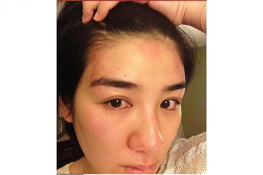 In an escalating marital dispute, Overheard 3 actress Huang Yi has denied cheating on her husband and released photos as purported evidence that he hit her. -- PHOTO:HUANG YI/WEIBO