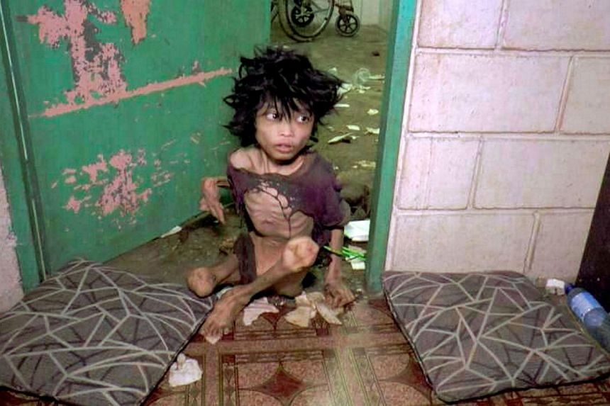 The teenager, Muhammad Firdaus Dullah was covered in filth and his own faeces when found by Immigration officers at the flat in Taman Semarak in Nilai. -- PHOTO:THE STAR PUBLICATION