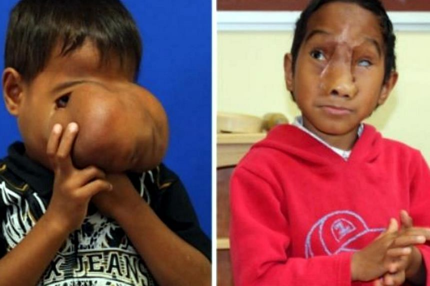 This combo of undated handout photos released on July 3, 2014 by the Monash Children's Hospital in Melbourne shows seven-year-old Jhonny Lameon from the Philippines before (L) and after (R) having surgery to remove a huge tumour from his face. - AFP