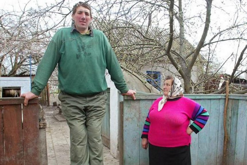 Olena Stadnyk (right) looking up at her son Leonid, who died on Sunday of a cerebral haemorrhage.Stadnyk, 44, reached almost 2.6m due to a tumorous gland that continued to secrete growth hormones throughout his life and died due to complication