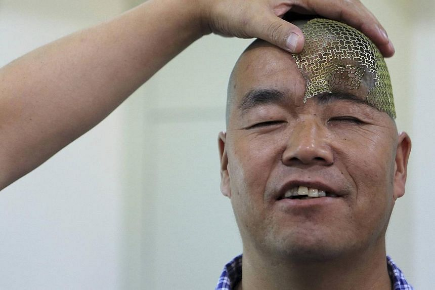 A medical staff displays a titanium mesh produced by a 3D printer before surgery to place it in the head of a patient surnamed Hu, at a hospital in Xi'an, Shaanxi province, on Aug 27, 2014. -- PHOTO: REUTERS