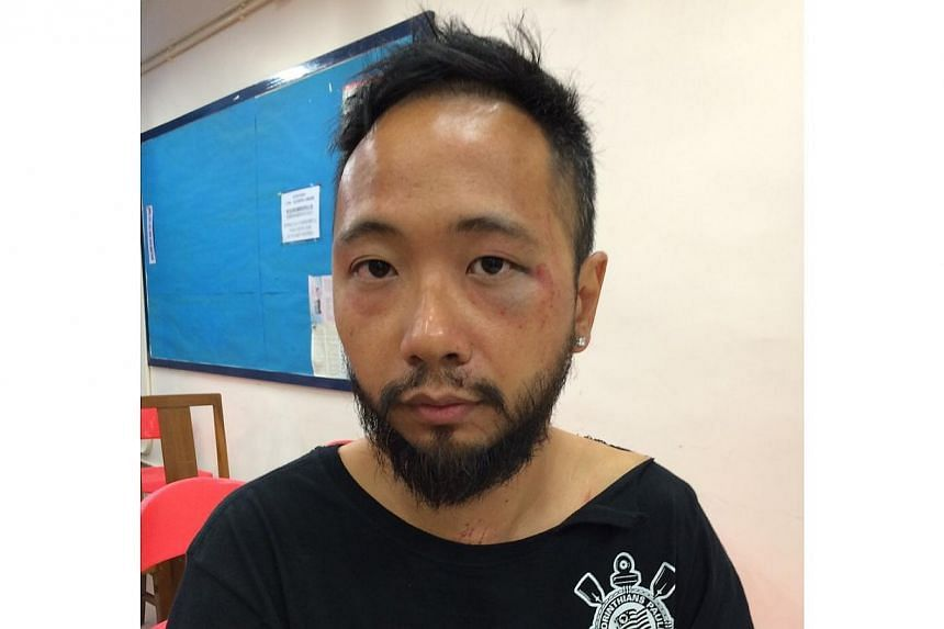 This photo obtained from Civic Party on Oct 15, 2014 shows party member Ken Tsang who was beaten by police officers following scuffles between the police and pro-democracy protestors in Hong Kong on October 15, 2014. The beating was captured on video