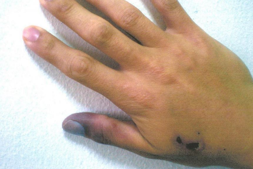 Mr Michael Balensiefer (above) almost lost a thumb and a finger as 15cm of the artery in his arm was blocked. He had received an injection of promethazine to his right hand, which led to pain, swelling and blackening of the thumb and the area where h