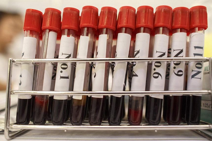 Blood test samples taken as part of a campaign to prevent HIV infection in Bangkok. Fewer than half of all HIV-positive people across the Asia-Pacific region are aware of their status.