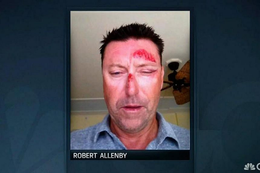Australian golfer Robert Allenby was recovering on Saturday from facial injuries after he was kidnapped, beaten, robbed and dumped in a park in Honolulu. -- PHOTO:TWITTER/GOLFCHANNEL
