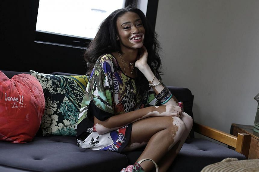 Former America's Next Top Model contestant Chantelle Winnie (above) is taking the fashion world by storm.Diagnosed with vertiligo aged four, she overcame school bullies and years of rejection to achieve her dream of becoming a top international