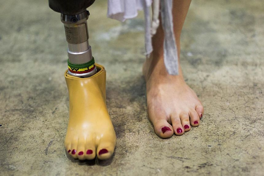 A woman wearing a prosthetic leg at the Hasselblad and Profoto booth, during the CP+ camera and imaging equipment trade fair in Yokohama on Feb 14, 2015. -- PHOTO: REUTERS
