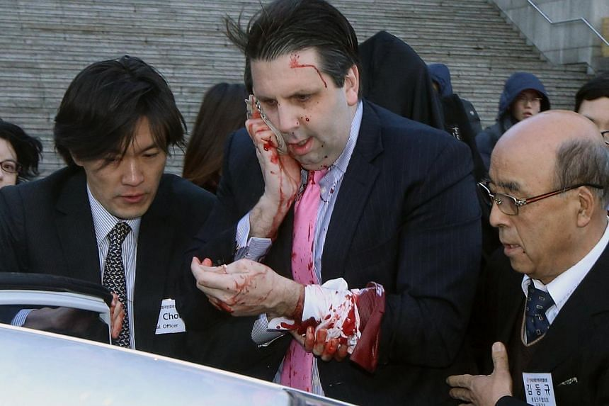 US Ambassador to South Korea Mark Lippert leaving after being slashed in the face by an unidentified assailant at a public forum in central Seoul on March 5, 2015. -- PHOTO: REUTERS