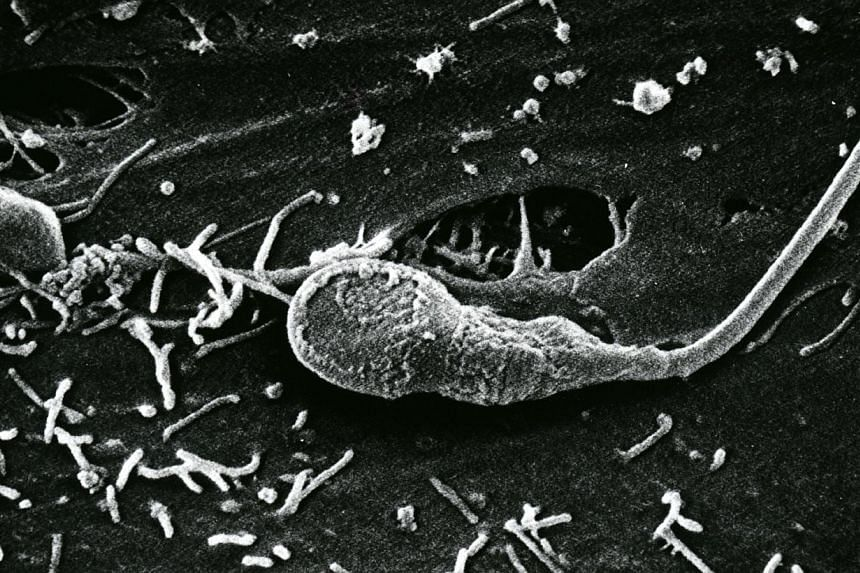 """The Kallistem laboratory in the eastern French city of Lyon this week announced they had obtained """"complete human spermatozoa in vitro"""" (not pictured), a world first which scientists have laboured towards for some 15 years.-- PHOTO:ST FIL"""