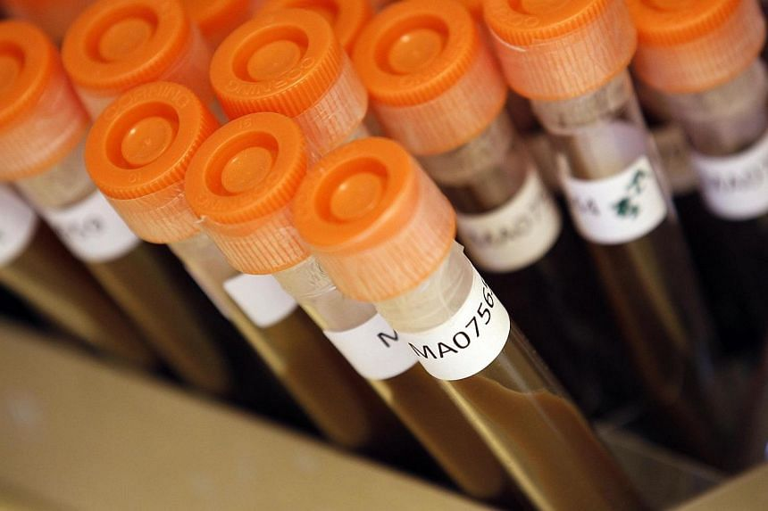 Test tubes filled with samples of bacteria to be tested are seen at the Health Protection Agency in north London in this file photo. -- PHOTO: REUTERS