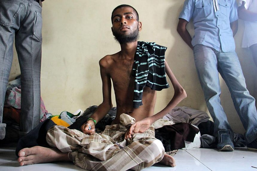A Rohingya migrant with a malnutrition taking a rest at Lhok Sukon stadium, North Aceh, Indonesia, on May 12, 2015. Despite the risks, the Rohingya continue to leave Myanmar in large numbers, fleeing anti-Muslim violence and discrimination in the pre