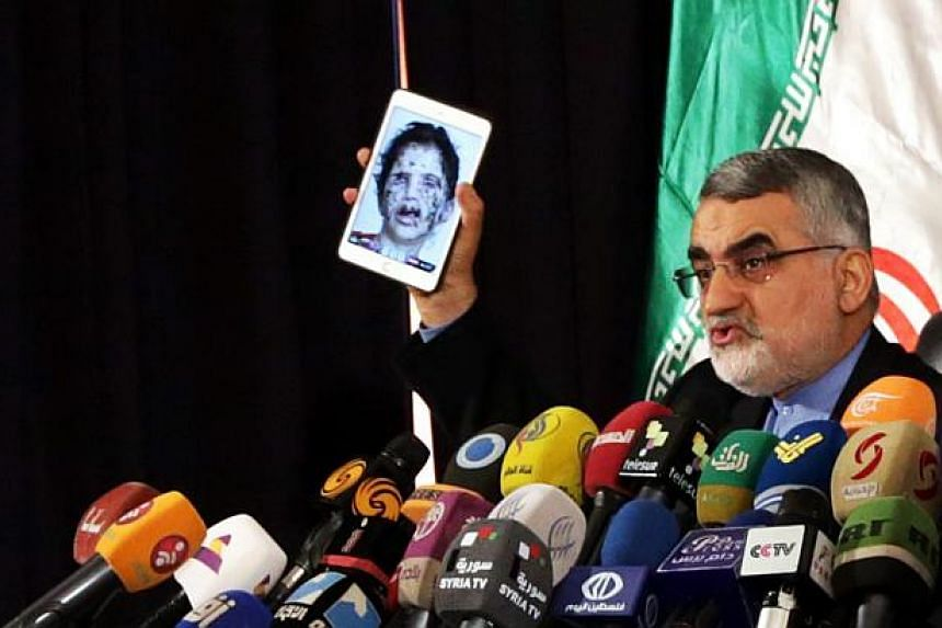Chairman of the Iranian Shura Council's Committee for Foreign Policy and National Security, Alaeddin Boroujerdi shows an image of an alleged victim of Yemeni fighting during a press conference in Damascus, Syria, on May 14, 2015.Boroujerd