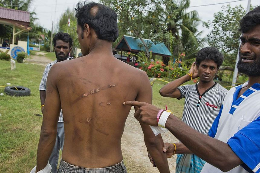 Bangladeshi Mohammad Meshar Ali showing compatriot Mohammad Murad Hussein's scars as he narrated the fight over supplies aboard the foundering boat off Indonesia.