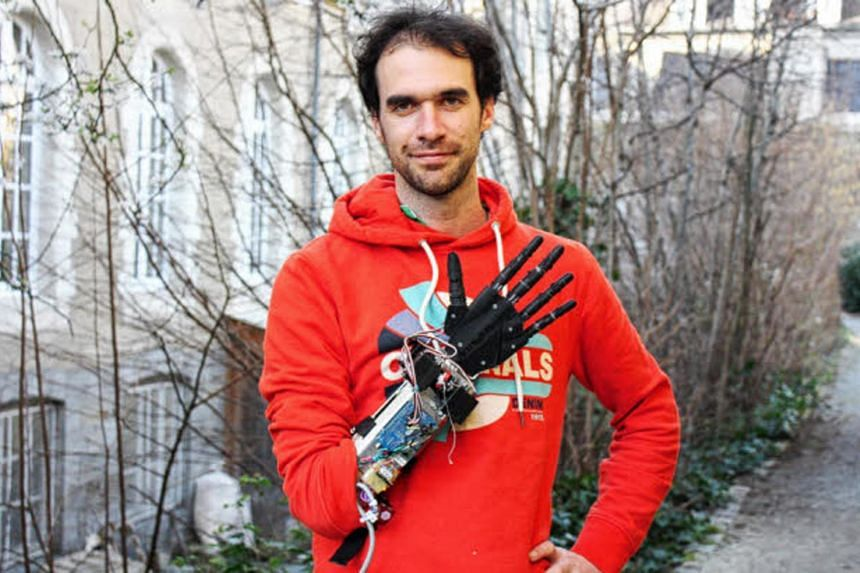 Mr Nicolas Huchet with his BionicoHand, a robotic prosthetic hand that can be made cheaply using tools like 3D printers.