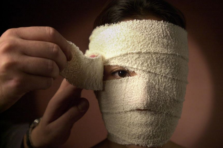 Some public hospitals and plastic surgeons say they see between two and 10 cases each year of people who run into trouble because of botched filler injections. - ST FILE PHOTO