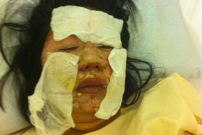 Ms Linda Er, 39, suffered third- degree burns on April 4 when a gas cooker exploded while she was dining at the eatery in Beach Road.