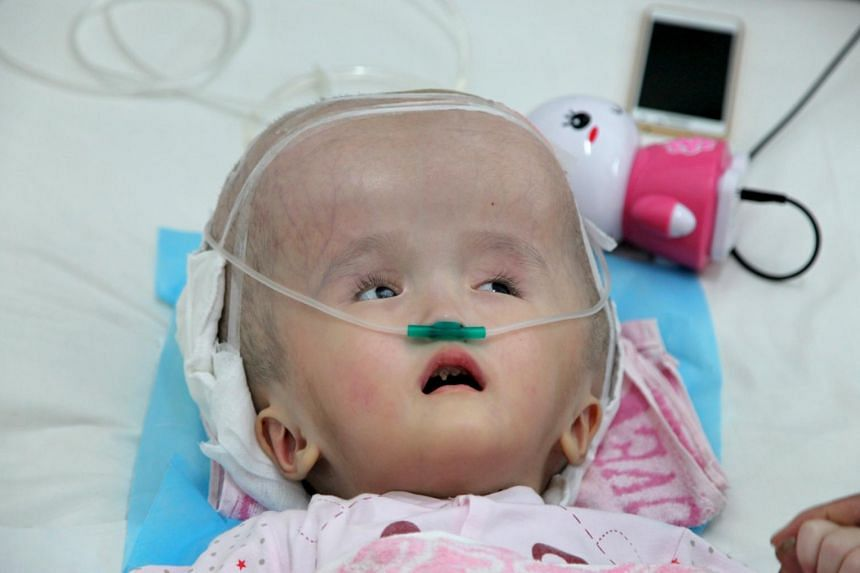 Before the operation, Han Han's head was so badly bloated by her condition that she could not even lift it (above). Congenital hydrocephalus causes an abnormal amount of fluid to build up in the brain. The three-year-old girl is still in intensive ca