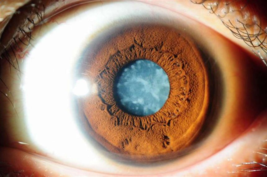 A file photo shows an eye in the advanced stages of cataract infection.